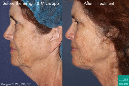 ThermiTight and microlipo for contouring the chin and jawline by Dr. Wu. Procedure removes submental fat and loose skin from under the chin for a more attractive facial profile.