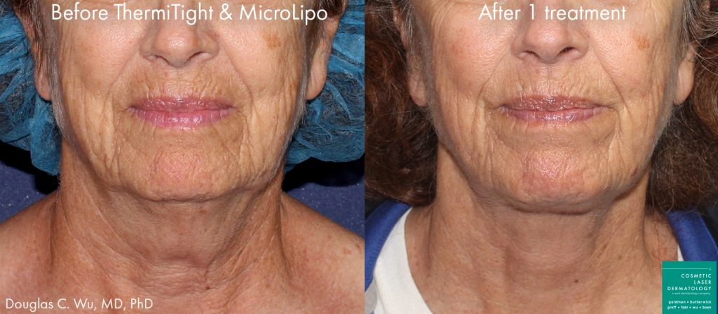 ThermiTight and microlipo for chin and jawline contouring by Dr. Wu. Disclaimer: Results may vary from patient to patient. Results are not guaranteed.