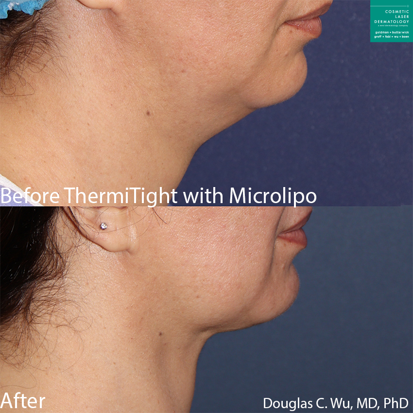 ThermiTight and microlipo to treat submental fat on a female patient by Dr. Wu. Disclaimer: Results may vary from patient to patient. Results are not guaranteed.