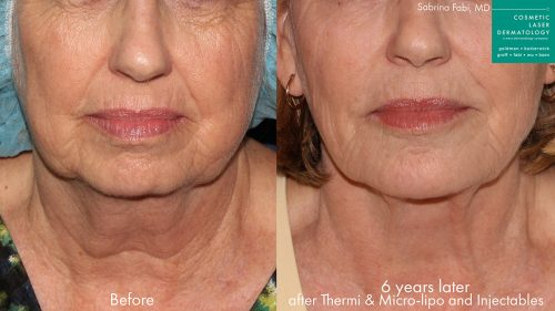 ThermiTight, micro-lipo, and injectables to rejuvenate lower face by Dr. Fabi. After treatment, jowls are visibly reduced and there are fewer lines and wrinkles in the lower face.