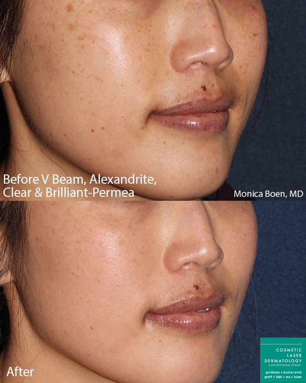 Vbeam, Clear+Brilliant and Alexandrite lasers for skin rejuvenation by Dr. Boen. Disclaimer: Results may vary from patient to patient. Results are not guaranteed.