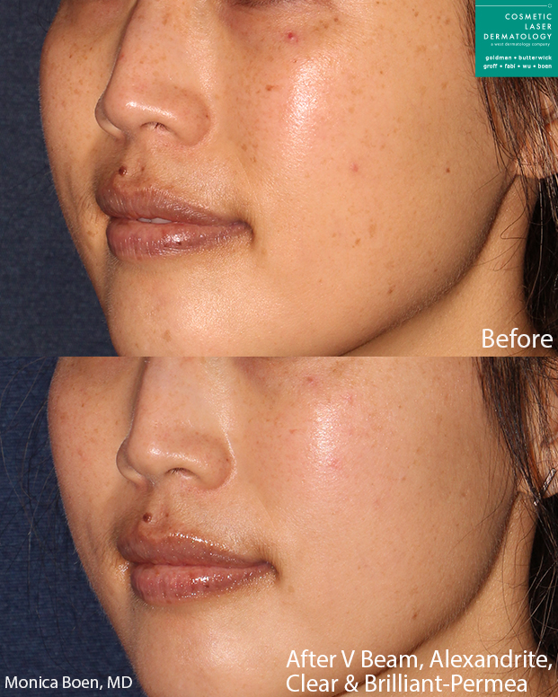 Vbeam, Alexandrite and Clear+Brilliant lasers for skin rejuvenation by Dr. Boen. Disclaimer: Results may vary from patient to patient. Results are not guaranteed.