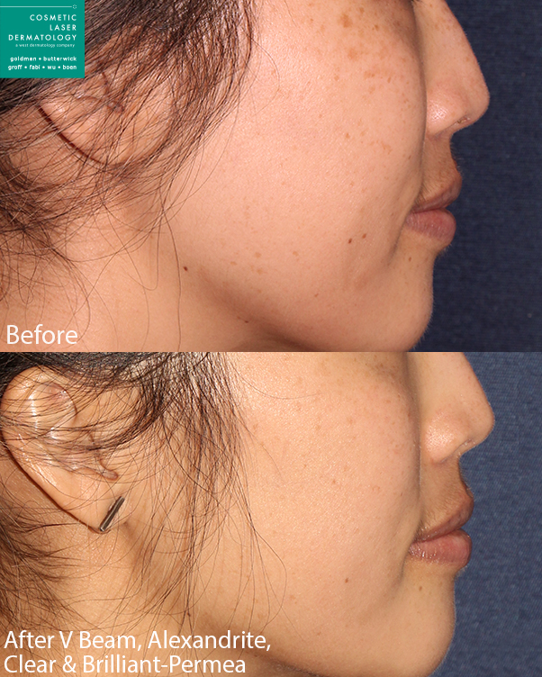 Vbeam, Alexandrite, and Clear+Brilliant lasers for skin rejuvenation by Dr. Boen. Disclaimer: Results may vary from patient to patient. Results are not guaranteed.