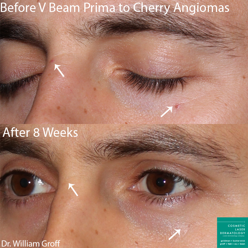 Vbeam Prima to treat cherry angiomas by Dr. Groff. Disclaimer: Results may vary from patient to patient. Results are not guaranteed.