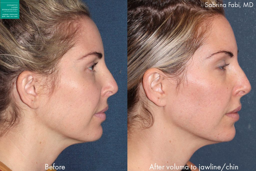 Voluma for jawline contouring by Dr. Fabi. Disclaimer: Results may vary from patient to patient. Results are not guaranteed.