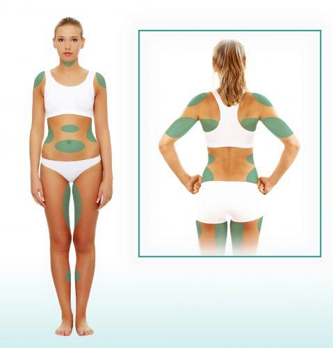 bodysculpting diagram in san diego, ca