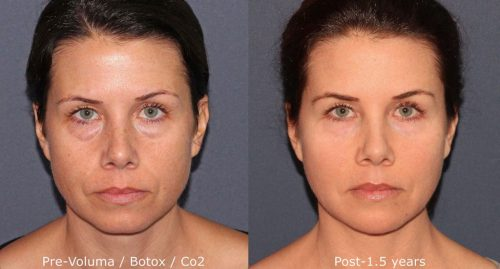 take10 treatment before and after where they used facial injectables and facial lasers to treat a patient in san diego, ca