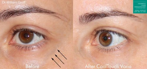 CoolTouch Varia to remove eye veins from a female patient by Dr. Groff. After treatment, visible vein is gone.