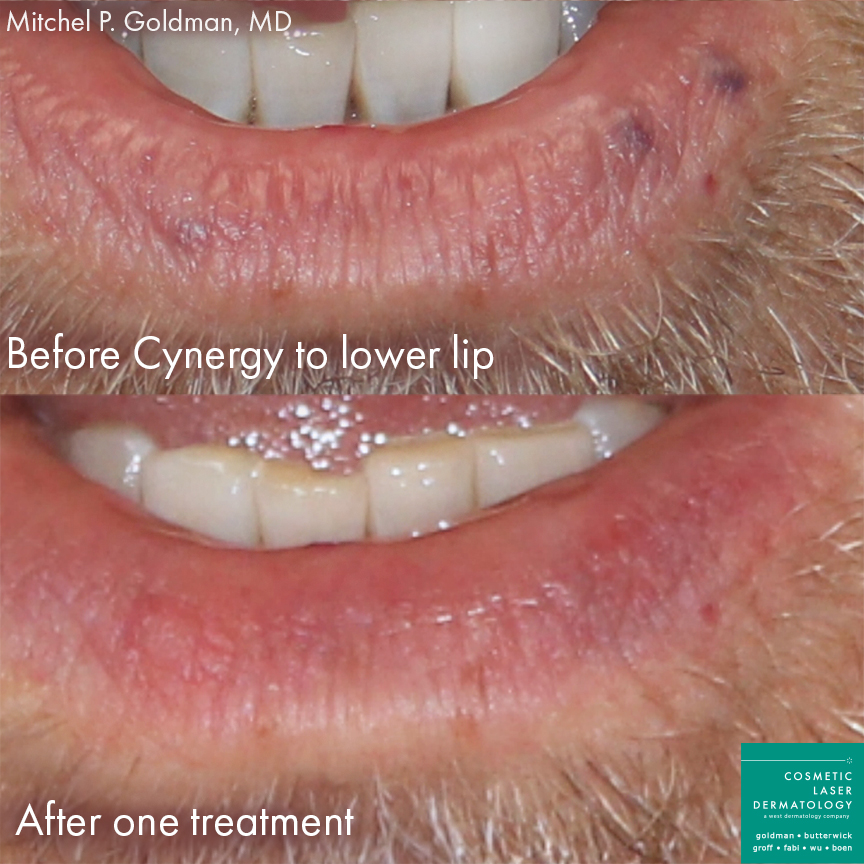 Cynergy laser to treat lesions on lower lip of male patient by Dr. Goldman. Disclaimer: Results may vary from patient to patient. Results are not guaranteed.