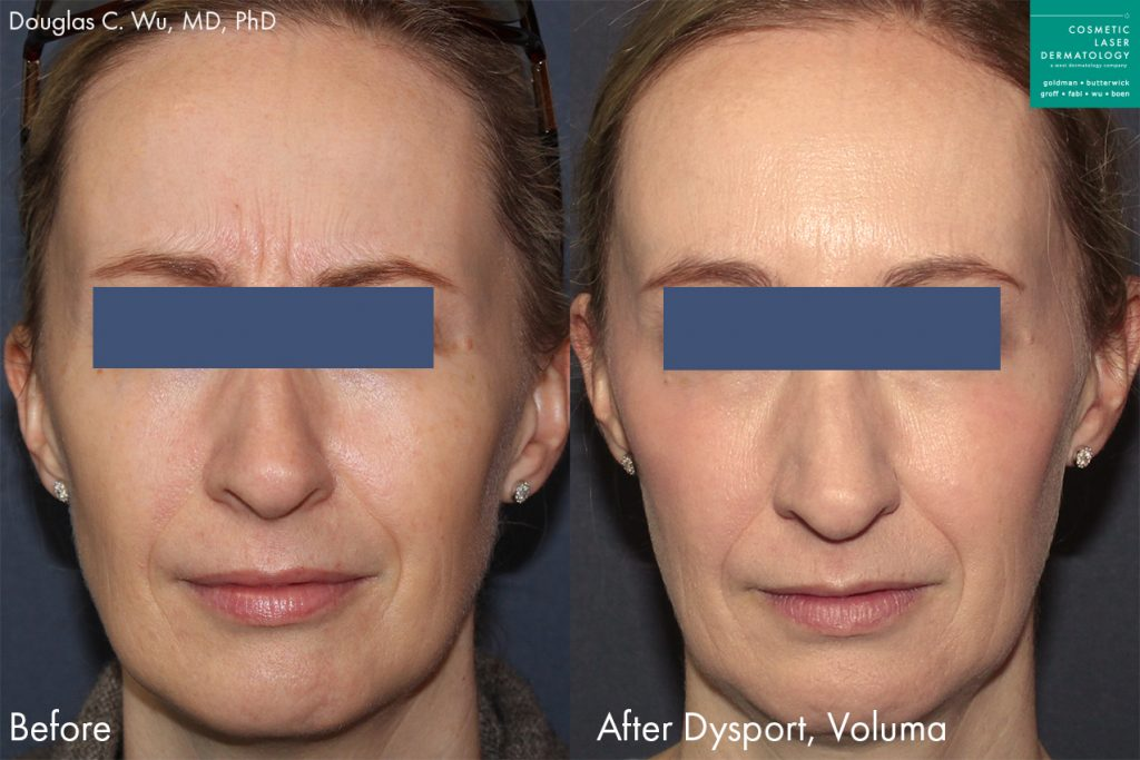 Dysport and Voluma for wrinkles and facial contouring of a female patient by Dr. Wu. Disclaimer: Results may vary from patient to patient. Results are not guaranteed.