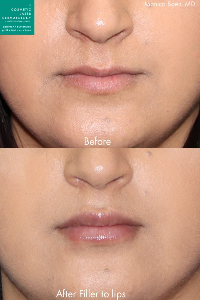 Injectable filler to augment the lips of a female patient by Dr. Fabi. Disclaimer: Results may vary from patient to patient. Results are not guaranteed.