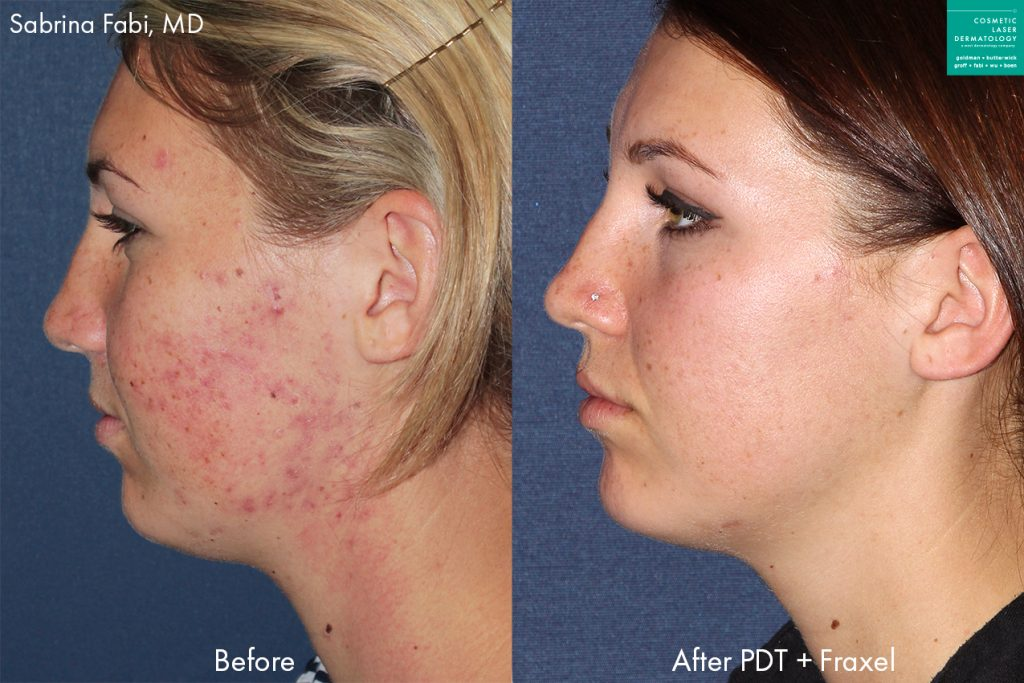 Fraxel and photodynamic therapy to treat acne on a female patient by Dr. Fabi. Disclaimer: Results may vary from patient to patient. Results are not guaranteed.