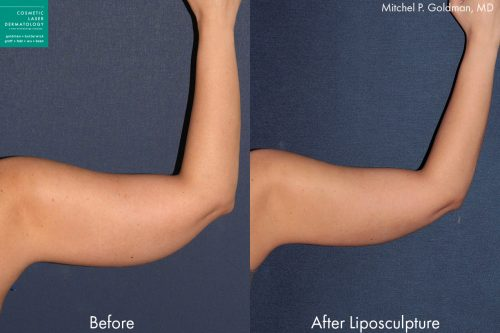 Liposuction to contour the upper arm of a female patient by Dr. Goldman. Treatment creates slimmer, firmer contour.
