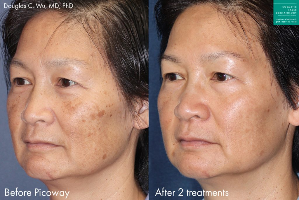 PicoWay laser to remove brown spots on a female patient by Dr. Wu. Disclaimer: Results may vary from patient to patient. Results are not guaranteed.
