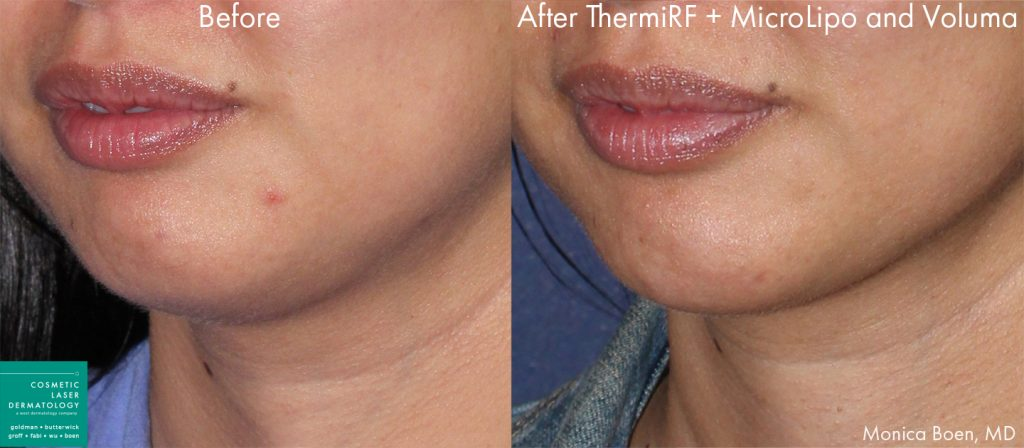 ThermiRF, microlipo, and Voluma to contour the chin of a female patient by Dr. Boen. Disclaimer: Results may vary from patient to patient. Results are not guaranteed.