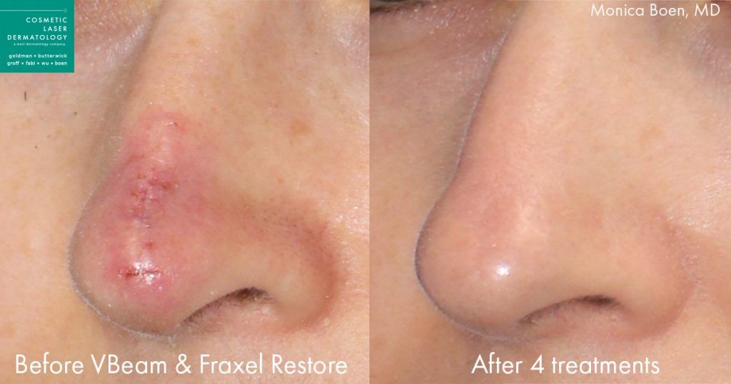 Vbeam and Fraxel Restore to treat the nose scar of a female patient by Dr. Boen. Disclaimer: Results may vary from patient to patient. Results are not guaranteed.