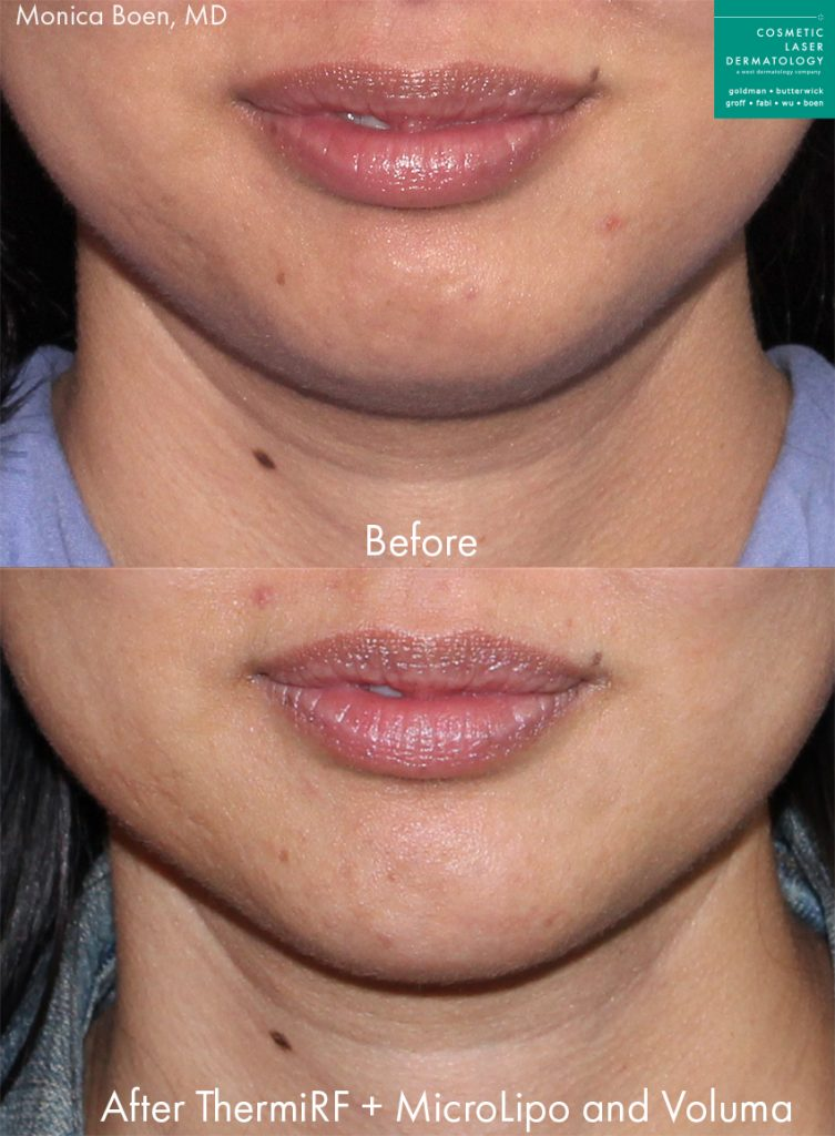 ThermiTight, micro-lipo, and Voluma to contour the lower face of a female patient by Dr. Boen. Disclaimer: Results may vary from patient to patient. Results are not guaranteed.