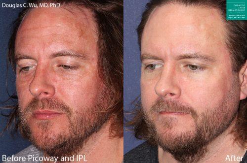 ipl laser facial insan diego, ca