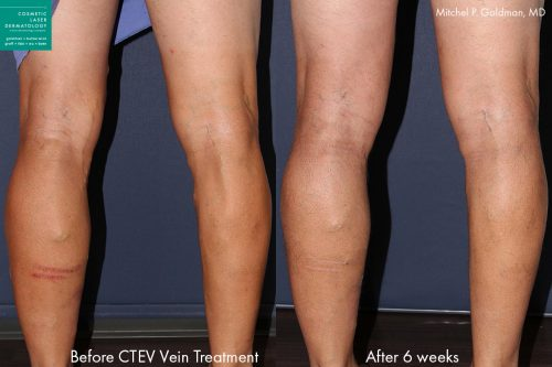 CTEV laser leg vein treatment in san diego, ca