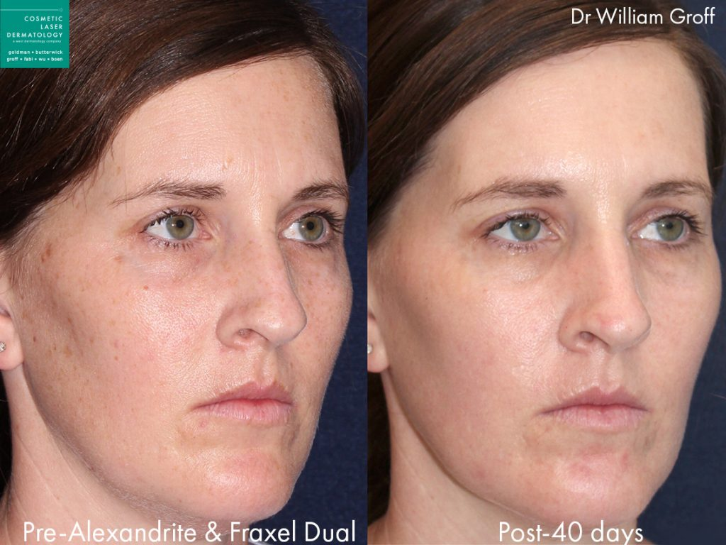 Fraxel Dual and Alexandrite lasers used to treat brown spots and rejuvenate the skin by Dr. Groff. Disclaimer: Results may vary from patient to patient. Results are not guaranteed.
