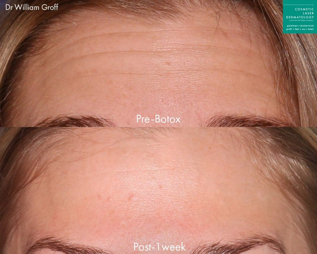 Botox injections used to treat forehead lines on a female patient by Dr. Groff. Disclaimer: Results may vary from patient to patient. Results are not guaranteed.