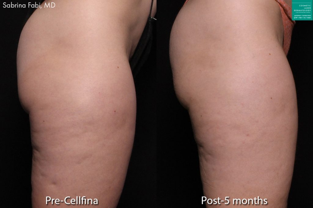 Cellfina to treat cellulite on the buttocks and thighs of a female patient by Dr. Fabi.  Disclaimer: Results may vary from patient to patient. Results are not guaranteed.