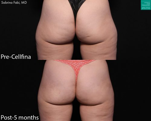 Cellfina to treat cellulite on buttocks and thighs of a female patient by Dr. Fabi. Treatment reduces appearance of dimpling and creates smoother skin.