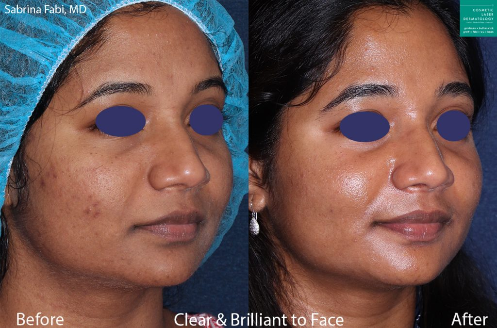 Clear and Brilliant to treat acne on a female patient by Dr. Fabi. Disclaimer: Results may vary from patient to patient. Results are not guaranteed.