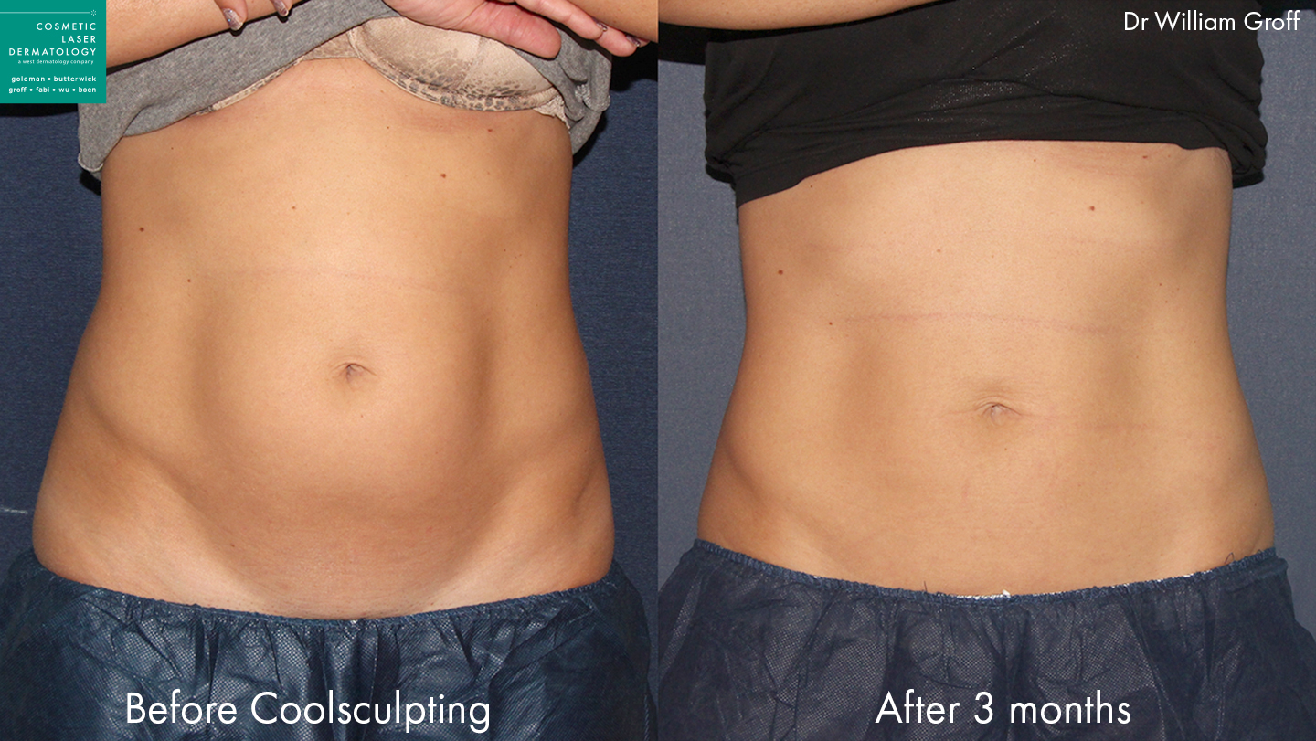 CoolSculpting to reduce abdominal fat and trim the midsection of a female patient by Dr. Groff. Disclaimer: Results may vary from patient to patient. Results are not guaranteed.