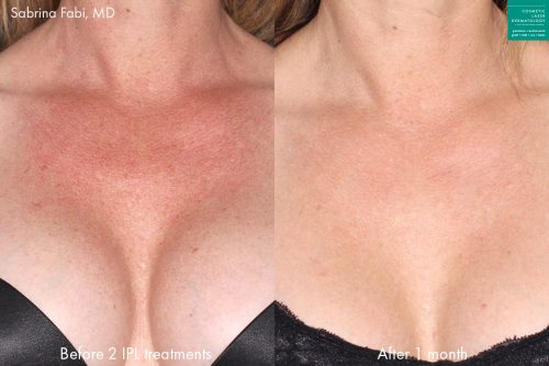 Intense pulsed light (IPL) therapy to rejuvenate the skin of the chest of a female patient by Dr. Fabi. Treatment removes discoloration for smoother, clearer skin.
