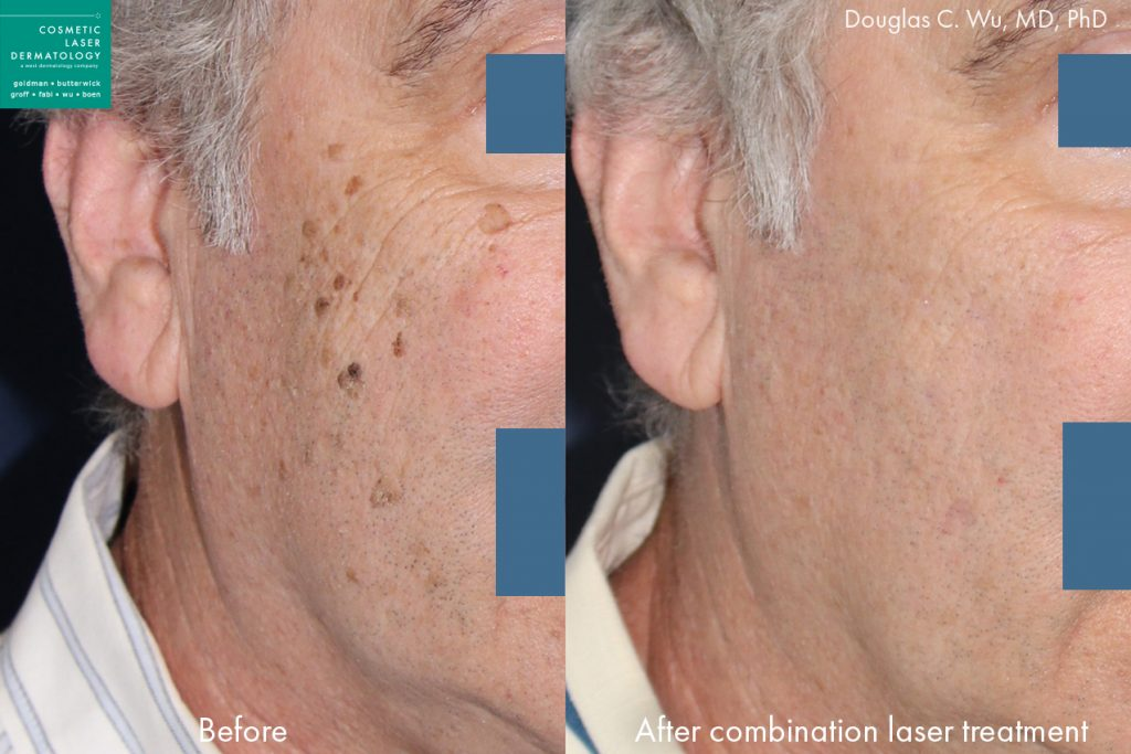 Combination laser treatment to remove brown spots by Dr. Wu. Disclaimer: Results may vary from patient to patient. Results are not guaranteed.