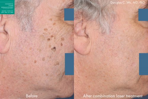 Combination laser treatment to remove brown spots by Dr. Wu. Treatment eliminates brown spots for clearer, more refreshed skin.