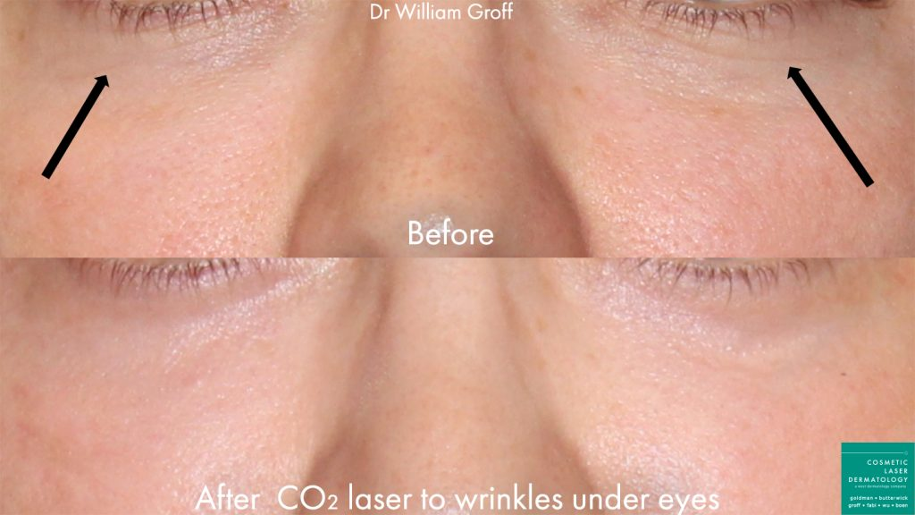 CO2 laser to rejuvenate skin underneath the eyes of a female patient by Dr. Groff. Disclaimer: Results may vary from patient to patient. Results are not guaranteed.