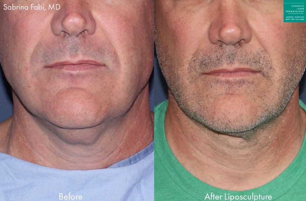 Neck liposuction to remove submental fat from a male patient by Dr. Fabi. Disclaimer: Results may vary from patient to patient. Results are not guaranteed.