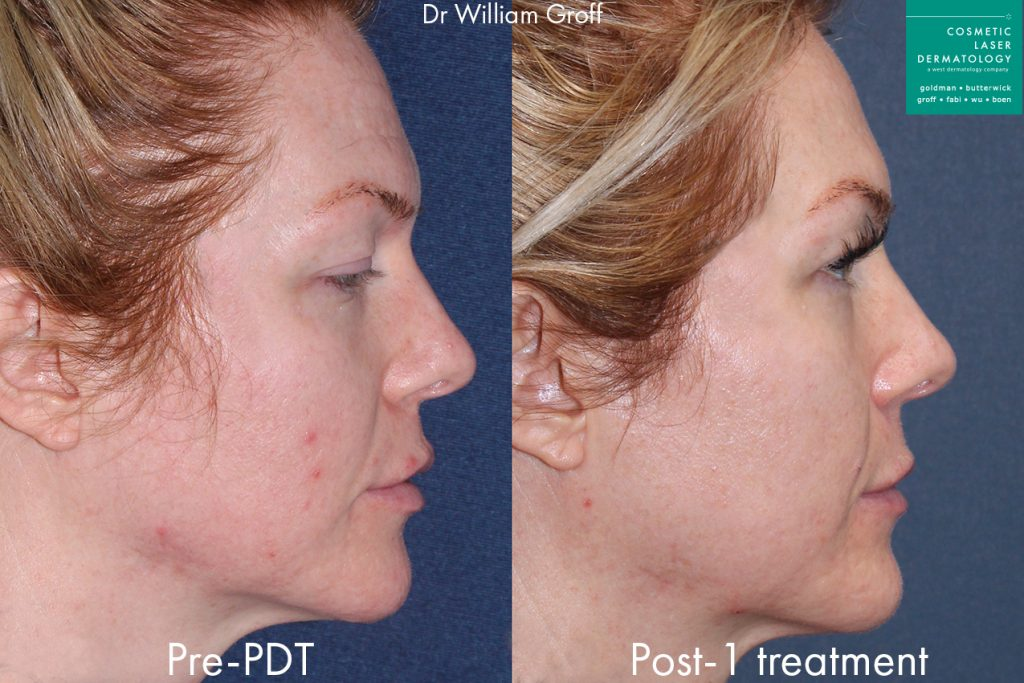 Photodynamic therapy to address breakouts and rejuvenate the skin by Dr. Groff. Disclaimer: Results may vary from patient to patient. Results are not guaranteed.