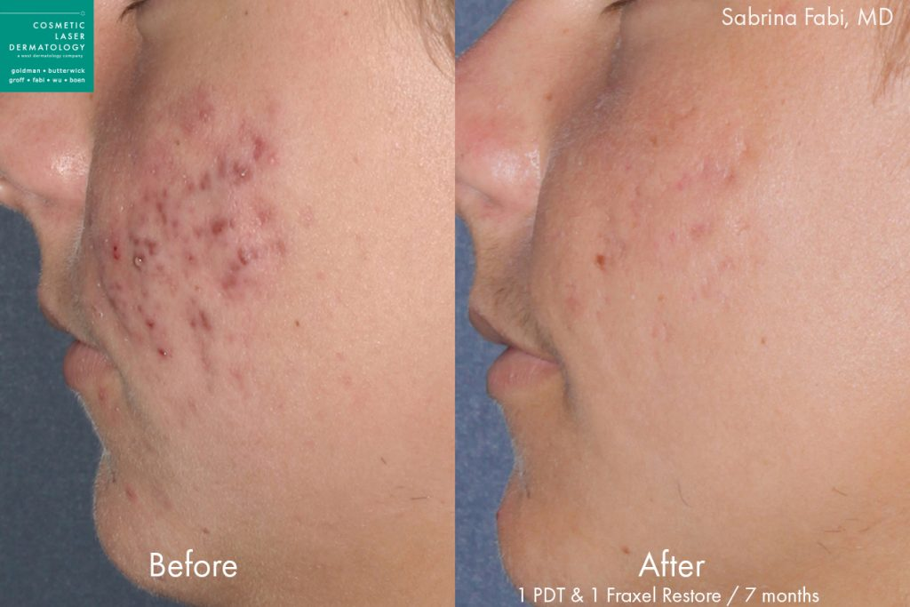 Fraxel laser and photodynamic therapy to treat acne for a male patient by Dr. Fabi. Disclaimer: Results may vary from patient to patient. Results are not guaranteed.