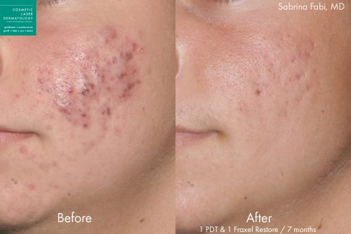 Fraxel and photodynamic therapy to treat acne on a male patient by Dr. Fabi. After treatments, skin is visibly clearer.
