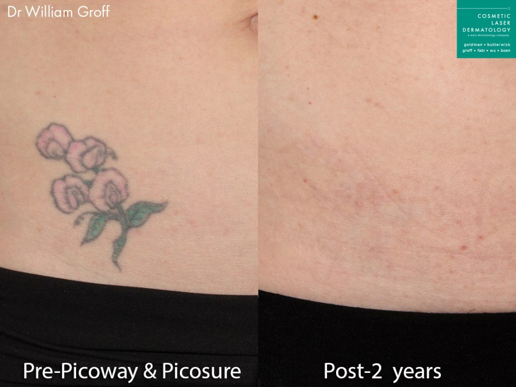 PicoSure and PicoWay lasers used to remove a tattoo. Two years later, ink is nearly completely eliminated.