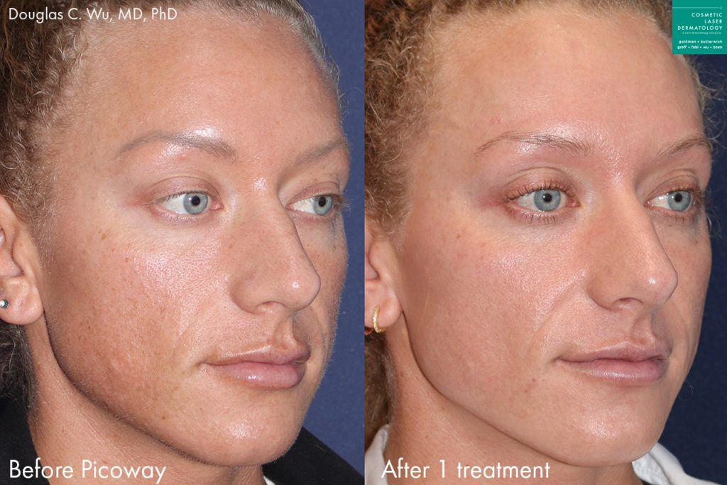 PicoWay Laser to Treat Sun Damage and Hyperpigmentation by Dr. Wu. Disclaimer: Results may vary from patient to patient. Results are not guaranteed.