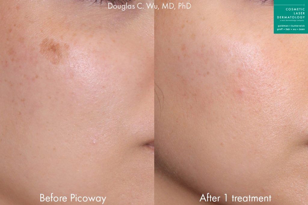PicoWay Laser to Treat Brown Spot by Dr. Wu. Disclaimer: Results may vary from patient to patient. Results are not guaranteed.