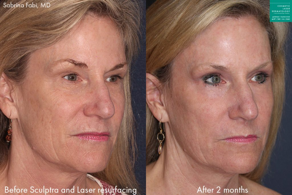 Laser resurfacing and Sculptra for facial rejuvenation by Dr. Fabi. Disclaimer: Results may vary from patient to patient. Results are not guaranteed.