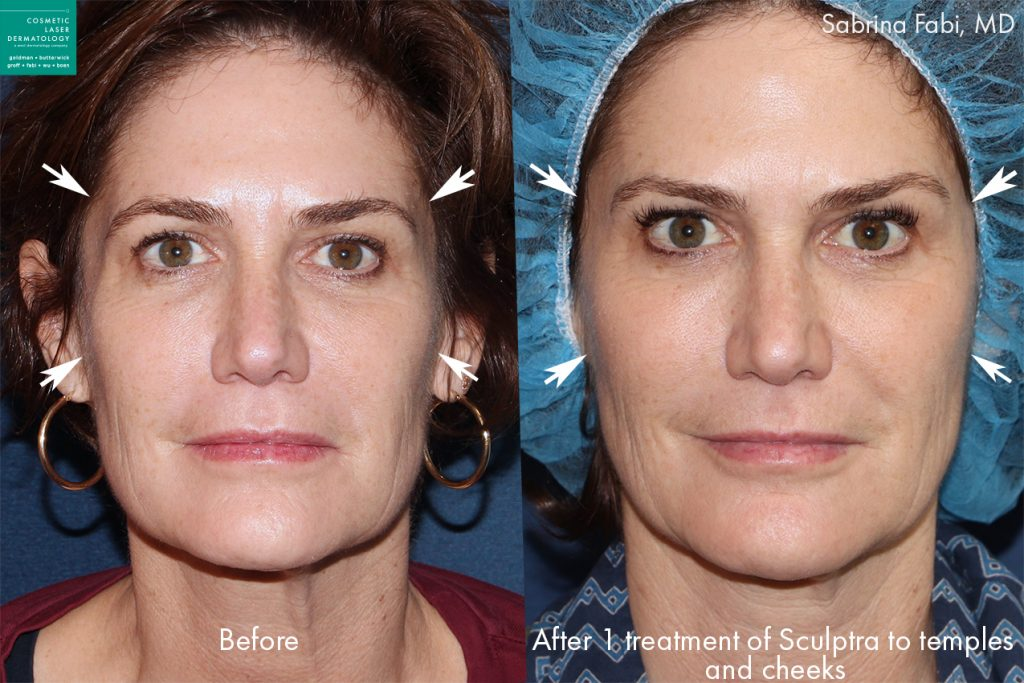 Sculptra to augment temples and cheeks of a female patient by Dr. Fabi. Disclaimer: Results may vary from patient to patient. Results are not guaranteed.