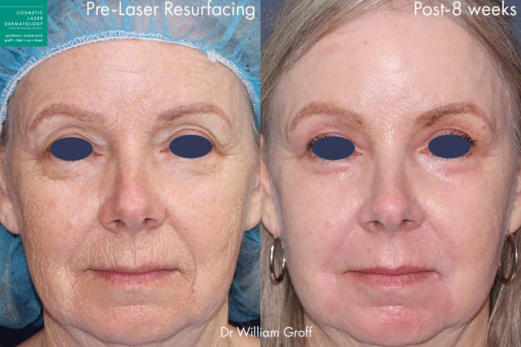 Take 10 treatment with laser resurfacing to rejuvenate the skin by Dr. Groff. Disclaimer: Results may vary from patient to patient. Results are not guaranteed.