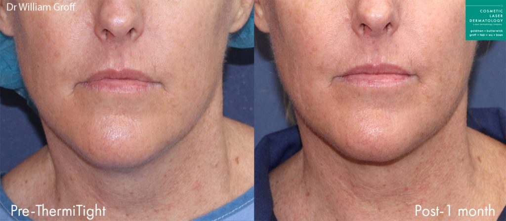 ThermiTight and microlipo for chin contouring by Dr. Groff. Disclaimer: Results may vary from patient to patient. Results are not guaranteed.