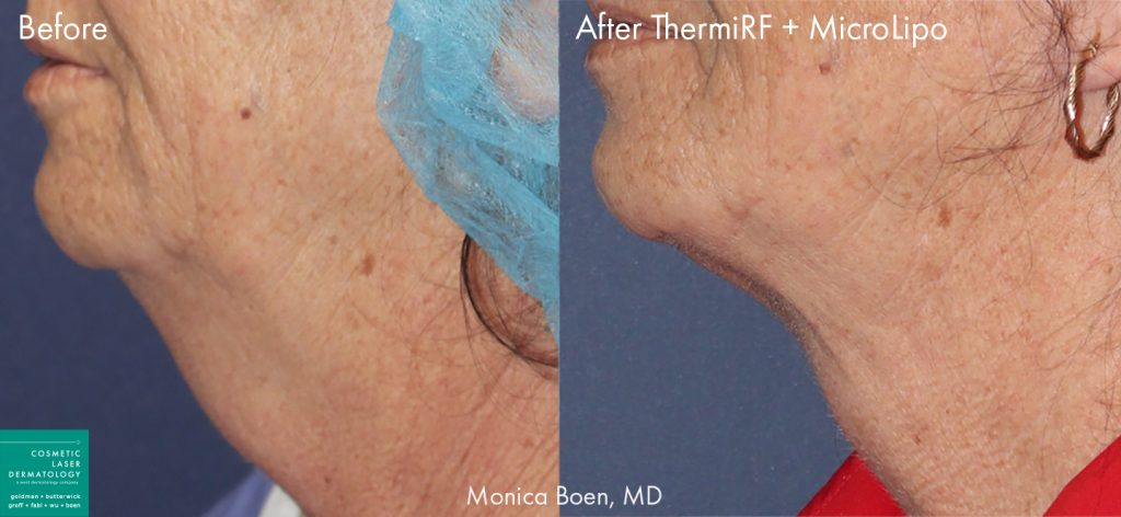 ThermiRF and microlipo to remove submental fat and tighten the skin of a female patient by Dr. Boen. Disclaimer: Results may vary from patient to patient. Results are not guaranteed.