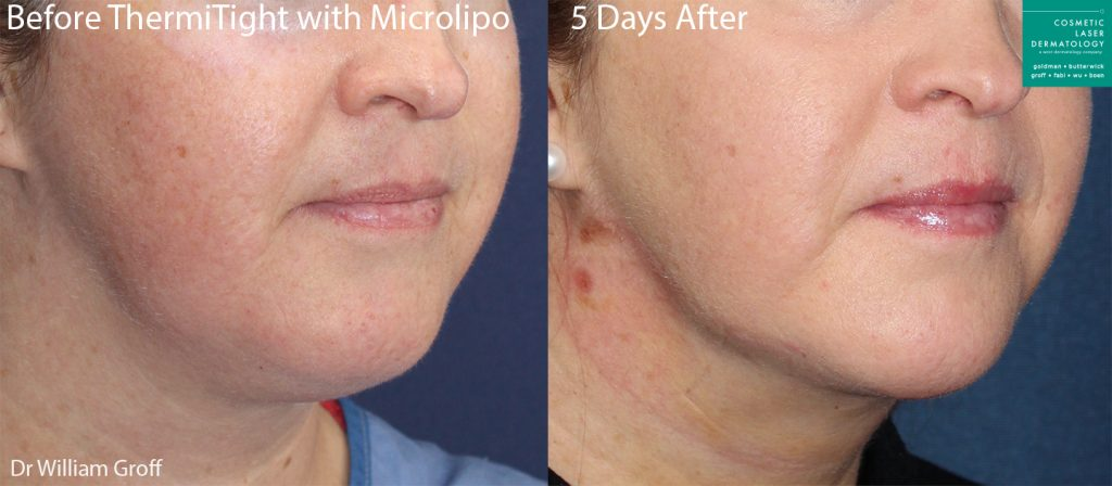 ThermiTight and microliposuction for chin contouring on a female patient by Dr. Groff. Disclaimer: Results may vary from patient to patient. Results are not guaranteed.