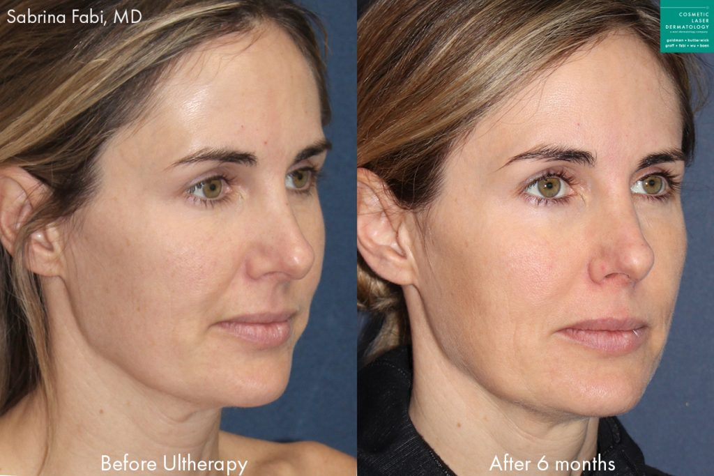 Ulthera to tighten skin and improve facial contour of a female patient by Dr. Fabi. Disclaimer: Results may vary from patient to patient. Results are not guaranteed.