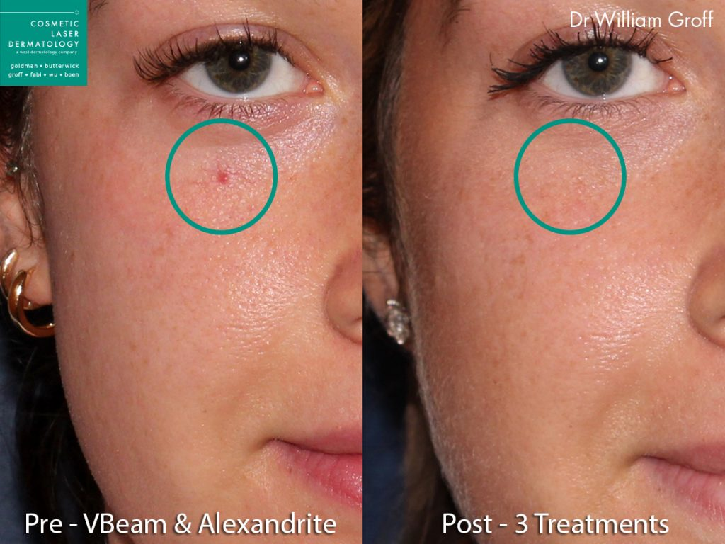 Vbeam and Alexandrite lasers to remove spiderangioma on a female patient by Dr. Groff. Disclaimer: Results may vary from patient to patient. Results are not guaranteed.