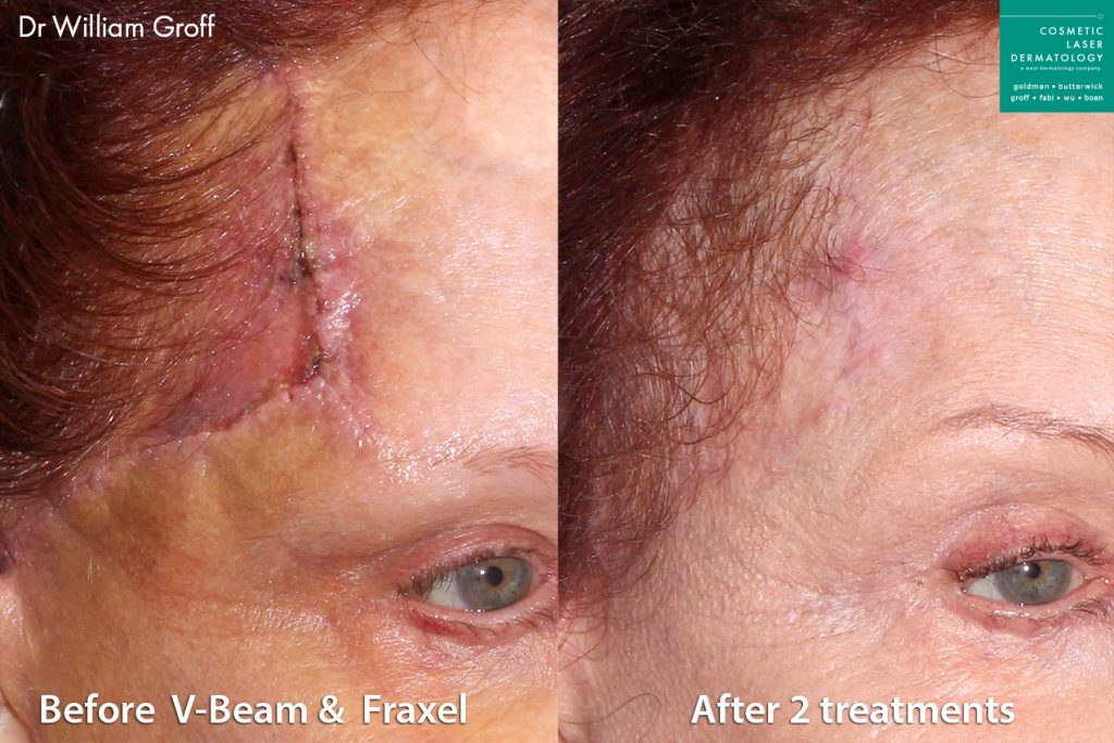 Vbeam and Fraxel used to reduce forehead scar on female patient by Dr. Groff. Disclaimer: Results may vary from patient to patient. Results are not guaranteed.