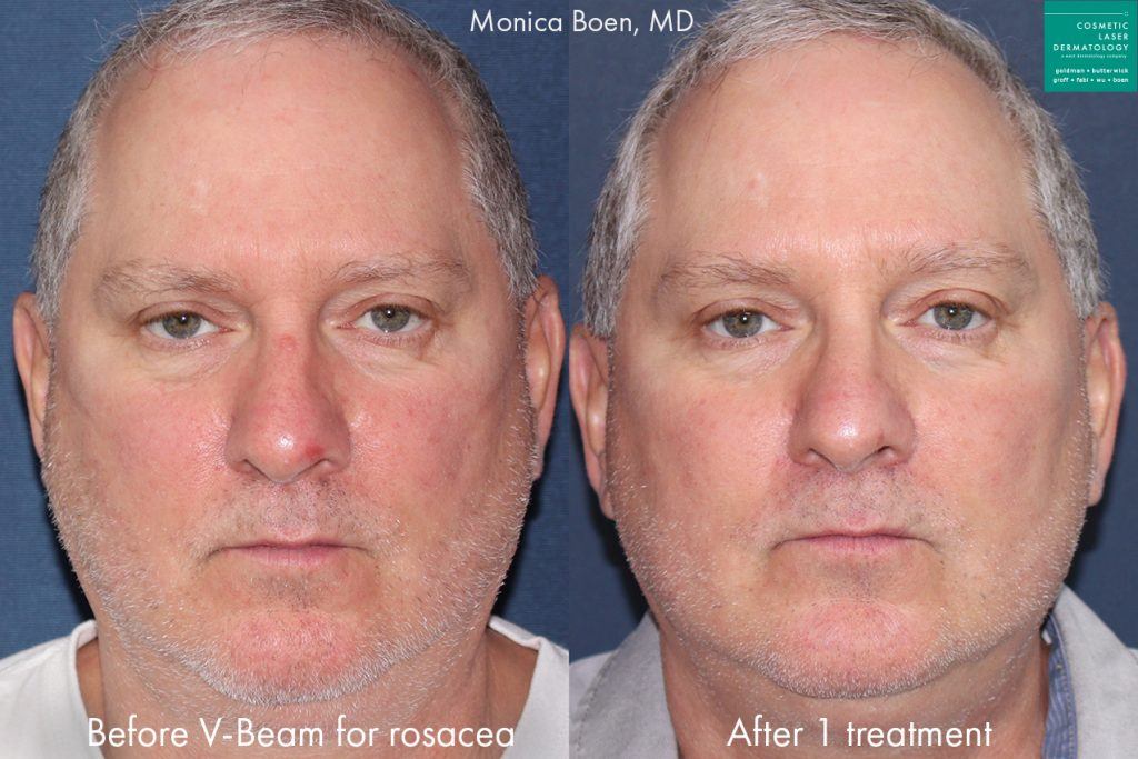 Vbeam laser used to reduce rosacea symptoms on the cheeks of a male patient by Dr. Boen. Disclaimer: Results may vary from patient to patient. Results are not guaranteed.